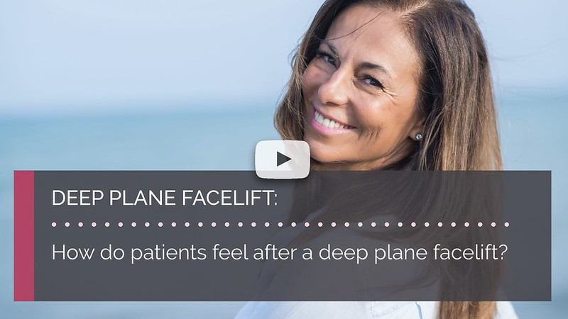 How do patients feel after a deep plane facelift mrinal supriya british face clinic london