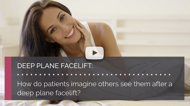 How do patients imagine others see them after a deep plane facelift british face clinic london mrinal supriya